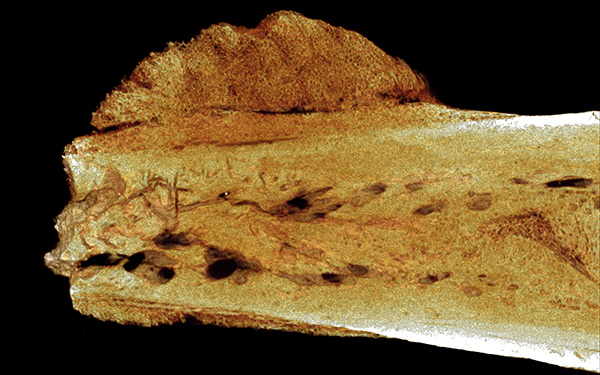 cancer in foot of fossil