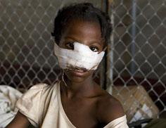 A girl survivor of the Haiti earthquake