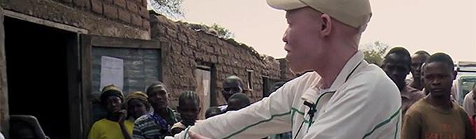 stop albino killings 2 article